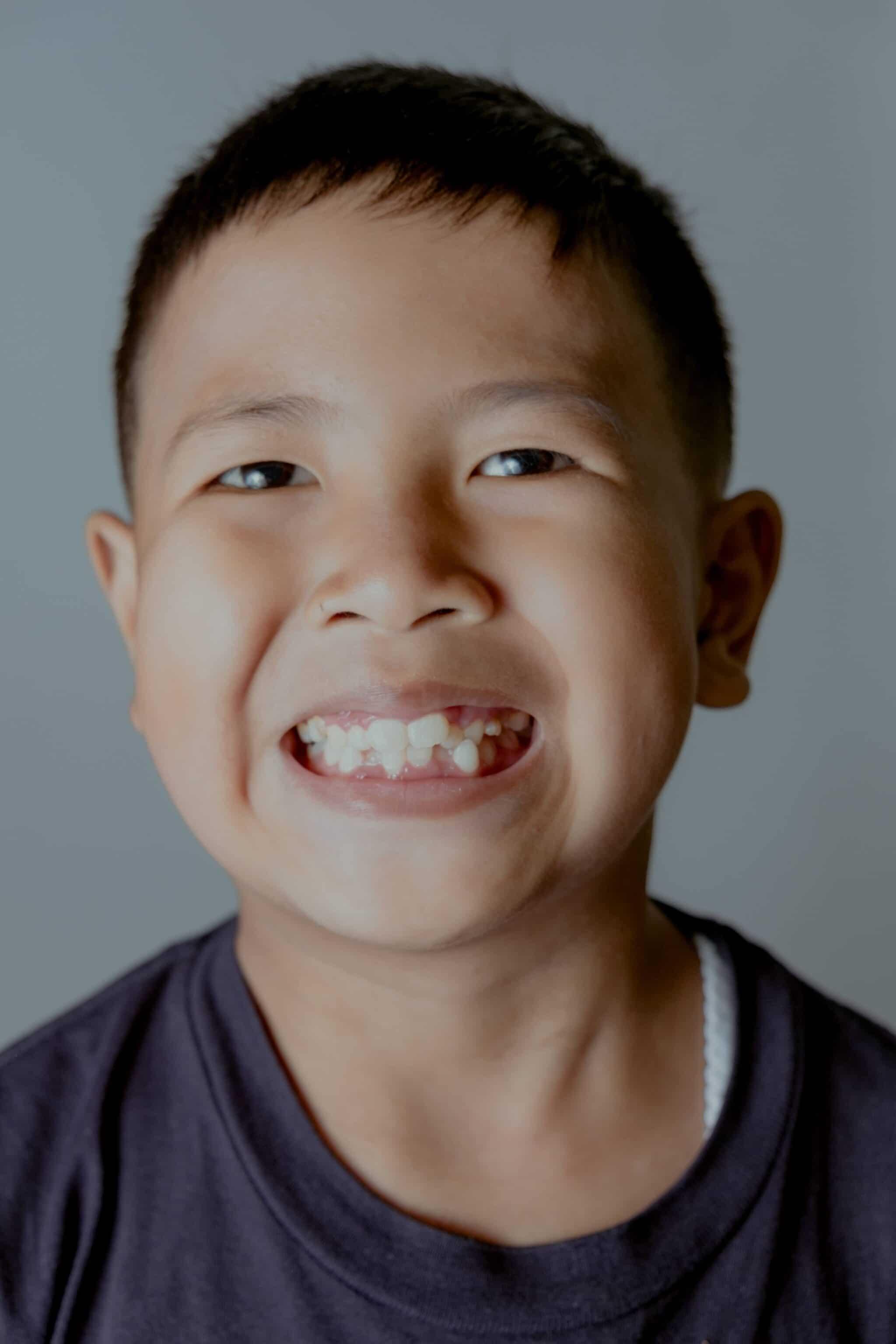 Introductie foto Functionele orthodontie